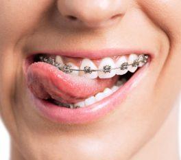 goofy-girl-with-braces-825x550